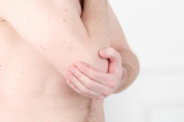 Бурсит локтевого и коленного суставов - диагностика и лечение в ...