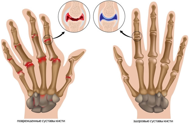 Лечение артроза мелких суставов конечностей болит сустав после бега