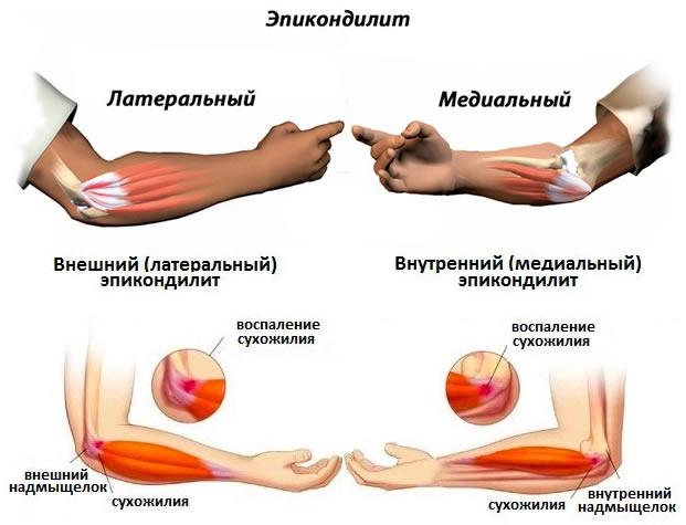 Болит И Щелкает Плечевой Сустав