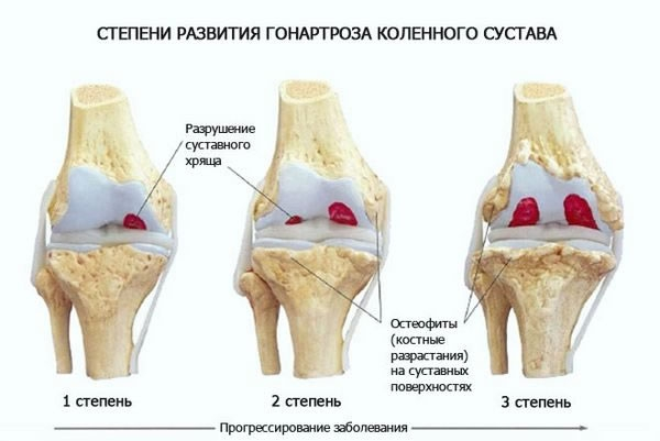 Лечение артрита 3 степени коленного сустава обезболивание при артрозе коленного сустава