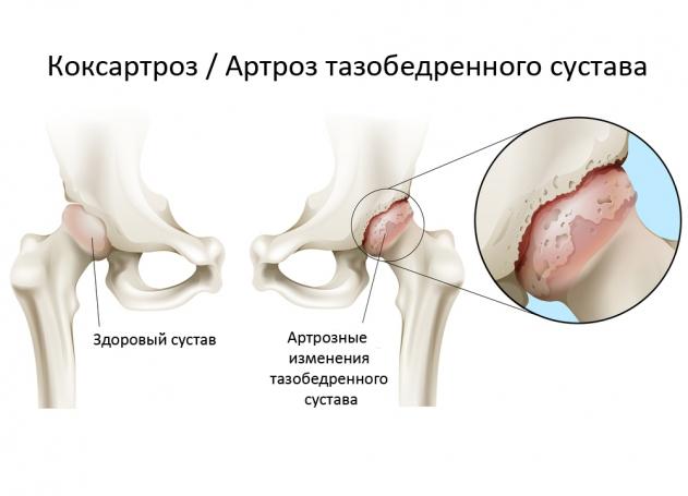 Коксартроз тазобедренного сустава 3 степени операция цена экссудативный синовит тазобедренного сустава
